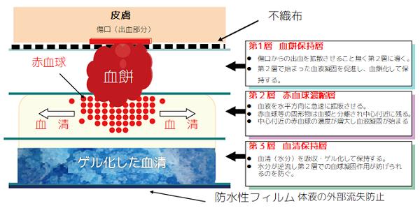 J・PADの構造